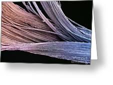 Dental Floss Sem Greeting Card by Spl
