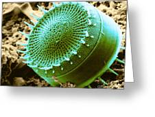 Freshwater Diatom, Sem Greeting Card by Asa Thoresen