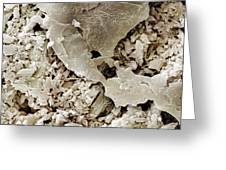 Gypsum Crystals Sem Greeting Card by Science Photo Library