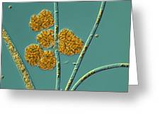 Microalgae, Light Micrograph Greeting Card by Science Photo Library
