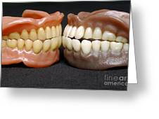 Two Sets Of Dentures Greeting Card by Medicimage