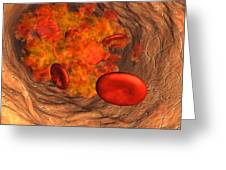 Blood Clot Greeting Card by Roger Harris