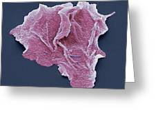 Cheek Squamous Cells, Sem Greeting Card by Steve Gschmeissner
