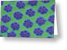 Diatom Cell Wall, Sem Greeting Card by Steve Gschmeissner
