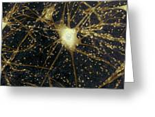 Motor Neurons, Light Micrograph Greeting Card by Steve Gschmeissner