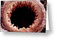Mouse Bronchiole, Sem Greeting Card by Science Source
