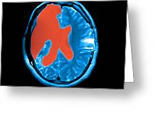 Mri Shows Near Total Hemispherectomy Greeting Card by Medical Body Scans
