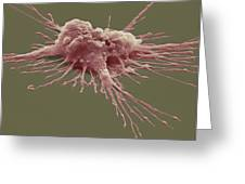 Pluripotent Stem Cell, Sem Greeting Card by Steve Gschmeissner