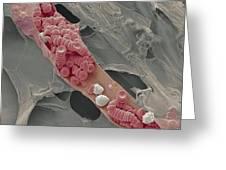 Ruptured Venule, Sem Greeting Card by Steve Gschmeissner