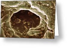 Sweat Pore, Sem Greeting Card by Biomedical Imaging Unit, Southampton General Hospital