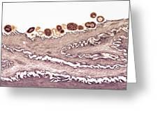 Tongue Bacteria, Tem Greeting Card by Thomas Deerinck, Ncmir