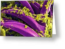 Yersinia Pestis Bacteria, Sem Greeting Card by Science Source