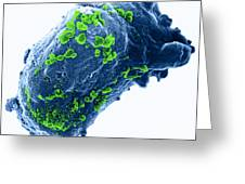 Lymphocyte With Hiv Cluster Greeting Card by Science Source