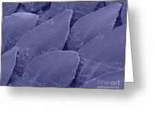 Shark Skin, Sem Greeting Card by Ted Kinsman