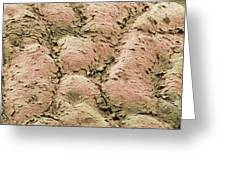 Skin Surface, Sem Greeting Card by Steve Gschmeissner