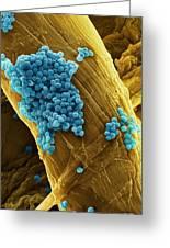 Streptococcus Pneumoniae Bacteria, Sem Greeting Card by Steve Gschmeissner