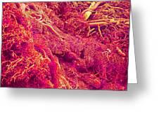 Blood Vessels, Sem Greeting Card by Susumu Nishinaga