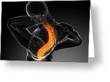 Back Pain, Conceptual Artwork Greeting Card by Sciepro