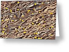 Hepatitis C Viruses, Tem Greeting Card by Thomas Deerinck, Ncmir