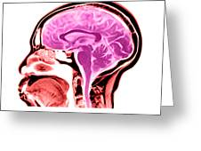 Sagittal View Of An Mri Of The Brain Greeting Card by Medical Body Scans
