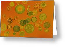Close View Of Diatoms Greeting Card by Darlyne A. Murawski