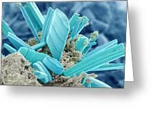 Diatoms, Sem Greeting Card by Susumu Nishinaga