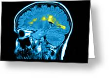 Mri Of Multiple Sclerosis Greeting Card by Medical Body Scans