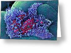 E. Coli Bacteria, Sem Greeting Card by Stephanie Schuller