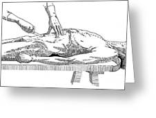 A Handbook Of Morbid Anatomy Greeting Card by Science Source