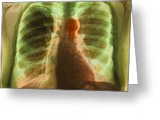 Aortic Aneurysm, X-ray Greeting Card by