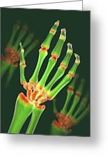 Arthritic Hand, X-ray Artwork Greeting Card by David Mack