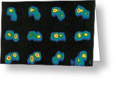 Castalia Asteroid Sequence, False-color Greeting Card by Science Source