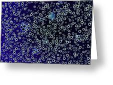 Cola Bubbles, Negative Image Greeting Card by Kevin Curtis