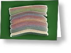 Colonial Diatom, Sem Greeting Card by Steve Gschmeissner
