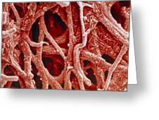 Coloured Sem Of Internal Membrane Of Hen Eggshell Greeting Card by Power And Syred