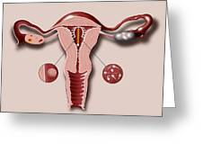 Contraceptive Coil In Uterus, Artwork Greeting Card by Art For Science