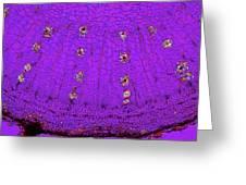 Dahlia Tuber, Light Micrograph Greeting Card by Dr Keith Wheeler