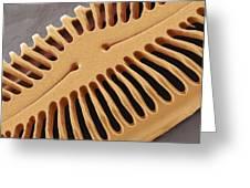 Diatom Frustule, Sem Greeting Card by Steve Gschmeissner