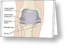 Knee After Knee Replacement, Artwork Greeting Card by Peter Gardiner