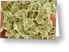 Platelets, Sem Greeting Card by Steve Gschmeissner