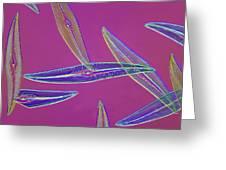 Pleurosigma Sp Diatoms, Light Micrograph Greeting Card by Frank Fox