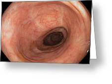 Scars In Colon After Ulcerative Colitis Greeting Card by Gastrolab