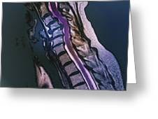 Slipped Disc, Mri Scan Greeting Card by Zephyr