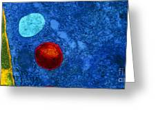 Tem Of Primary Lysosome In Liver Cellsc7036 Greeting Card by CNRI and SPL and Photo Researchers