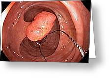 Tubular Polyp In The Colon Greeting Card by Gastrolab