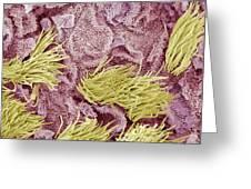 Uterine Cancer, Sem Greeting Card by Steve Gschmeissner