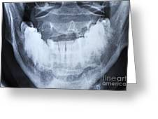 X-ray Of Healthy Mature Man's Jawbone Greeting Card by Sami Sarkis
