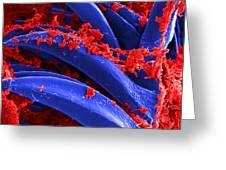 Yersinia Pestis Bacteria Sem Greeting Card by Science Source