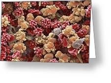 Cells From A Urine Infection, Sem Greeting Card by Steve Gschmeissner