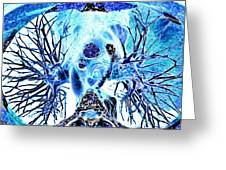 Heart And Lungs, 3d Ct Scan Greeting Card by Pasieka